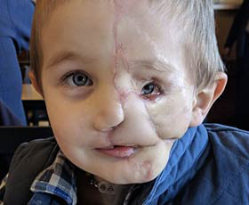 Chapel hill boy mauled by two rotteilers