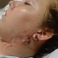 Ceara Schofield dog attack injuries