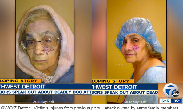 previous pit bull attack injuries, elizabeth rivera, detroit