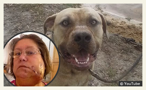 grandmother attacked by family pit bull during ice bucket challenge