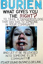 Jeannette Cunningham pit bull attack poster