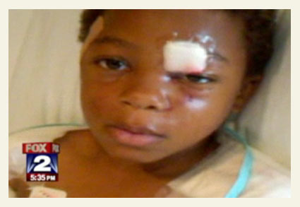 Warren boy survives second pit bull mauling