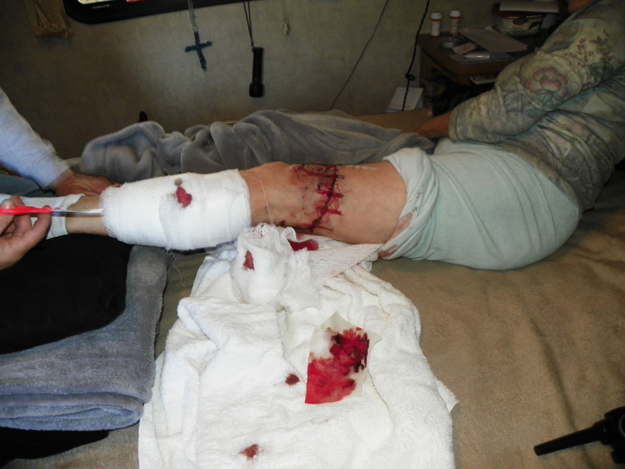 East Texas Woman Severely Mauled by Pit Bull at 'Dog Friendly' Private ...