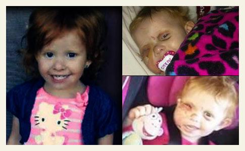 doctors restore little girls face Payton Bronish